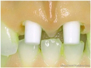 zirconia-implants