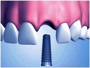 zirconia-dental-implant