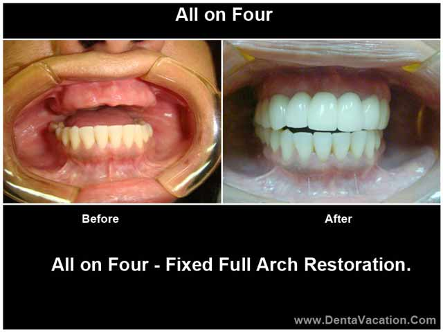 Permanent Dentures Cost In India >> All on 4 Dental Implants in India | Low Cost Smile in a Day | DentaVacation