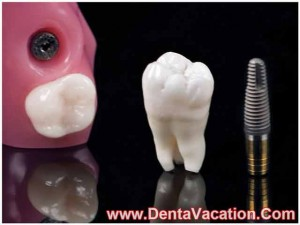 clear-choice-dental-implants