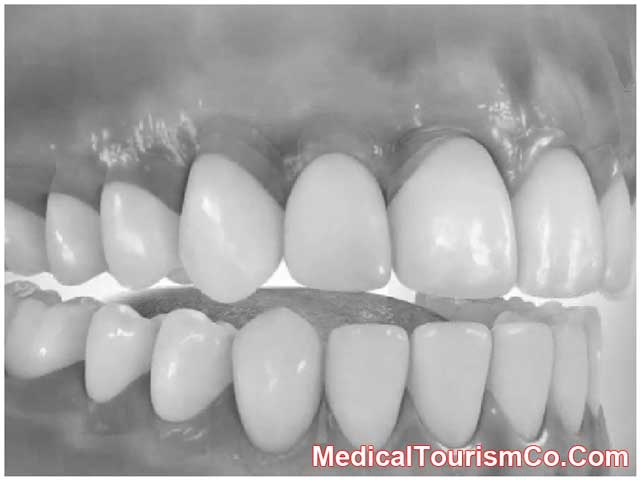 Upper And Lower Jaw Bone Grafting In Mexico Low Cost Upper And