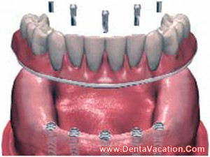 implant hybrid denture in costa rica