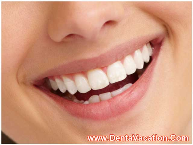 Dental Veneers In Mexico Dentavacation