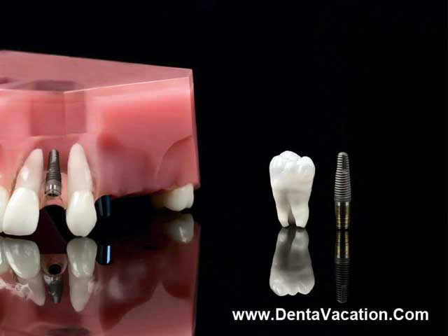 Same-Day Dental Implants in Cancun - Mexico | DentaVacation