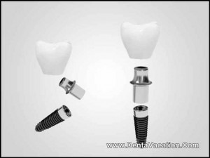 Dental Implants in Phuket