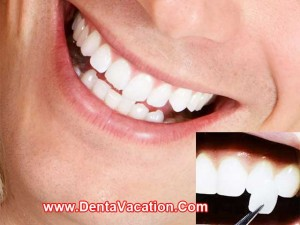 Dental Veneers in Los Algodones - Mexico