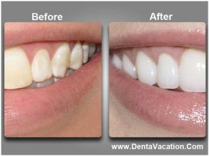 Cosmetic Dentistry in Cancun