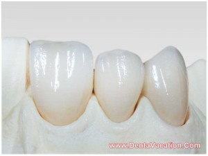 Emax Crowns in India