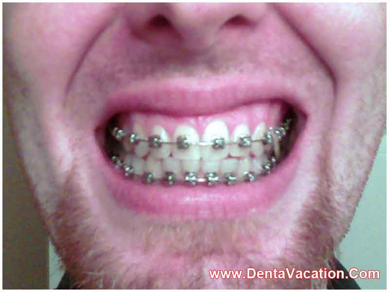 how to become an orthodontist in canada