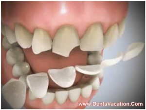 Dental Veneers in Pattaya