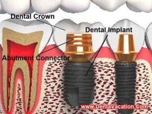Dental Implants in Patong