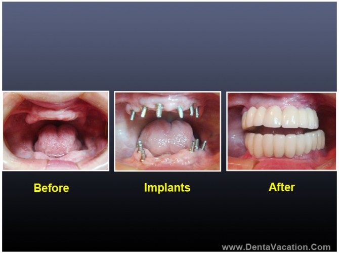 Dental Treatment - Before After