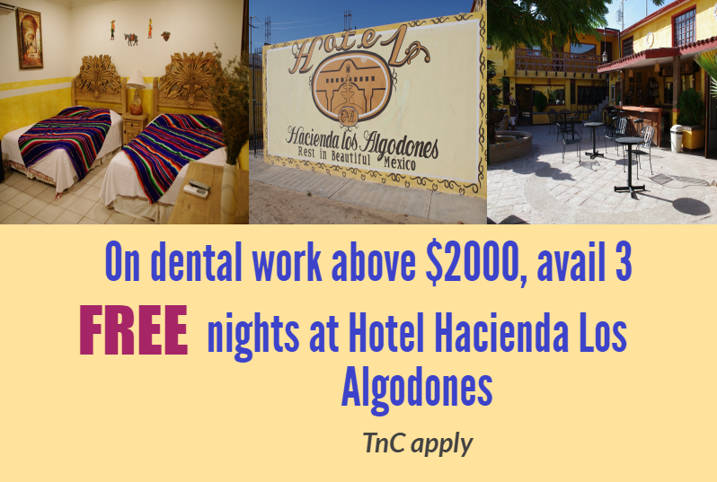 Hotel Hacienda Offer