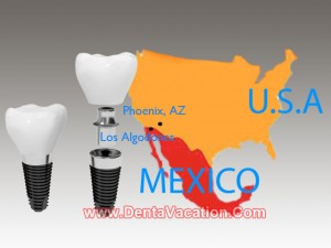 Phoenix to Los Algones for Dental Implants