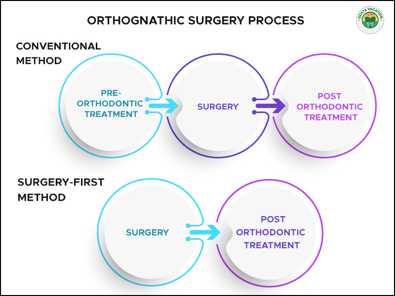 Orthognathic Surgery Process