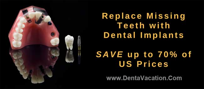 Savings With Dental Implants