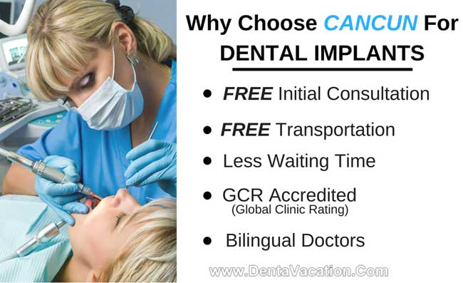 Why Choose Cancun For Dental Implants