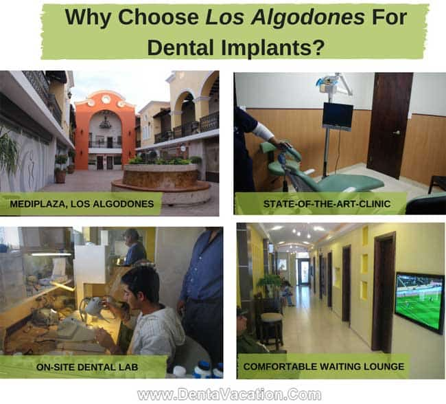 Why Choose Los Algodones For Dental Implants?