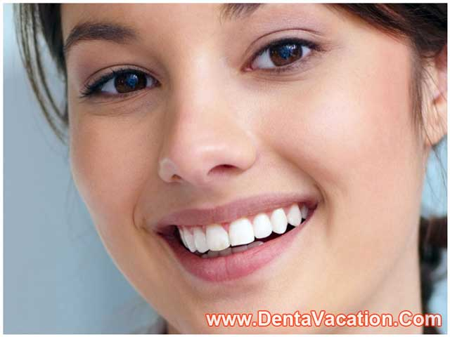 Same Day Dental Implants In Los Algodones Mexico