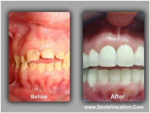Full mouth rehabilitation before and after of patient in Cancun
