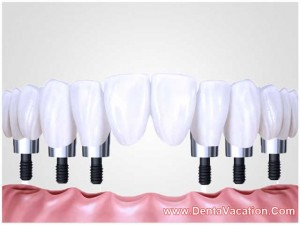 Fixed Dentures in Cancun - Mexico