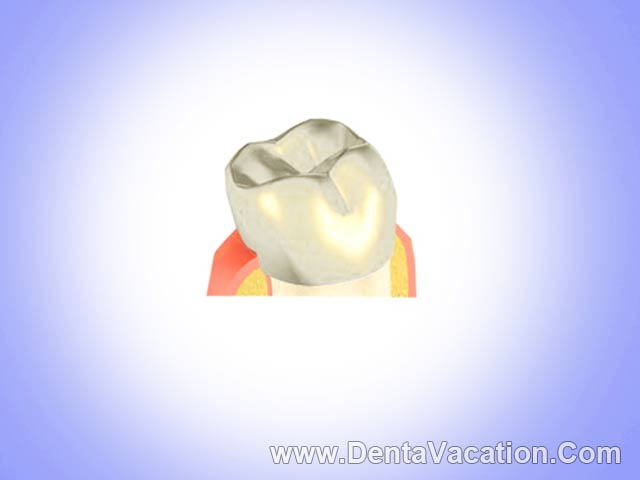 Dental Crowns Abroad