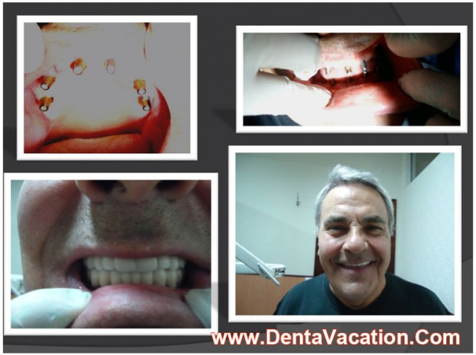 Full Mouth Rehabilitation with Implants