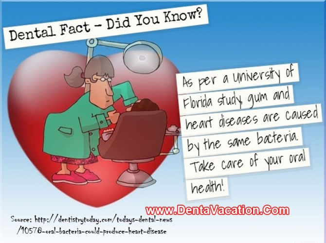 Interesting Dental Fact - Gum and Heart Diseases