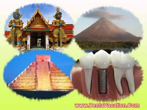 Destinations for Cheap Dental implants in The World