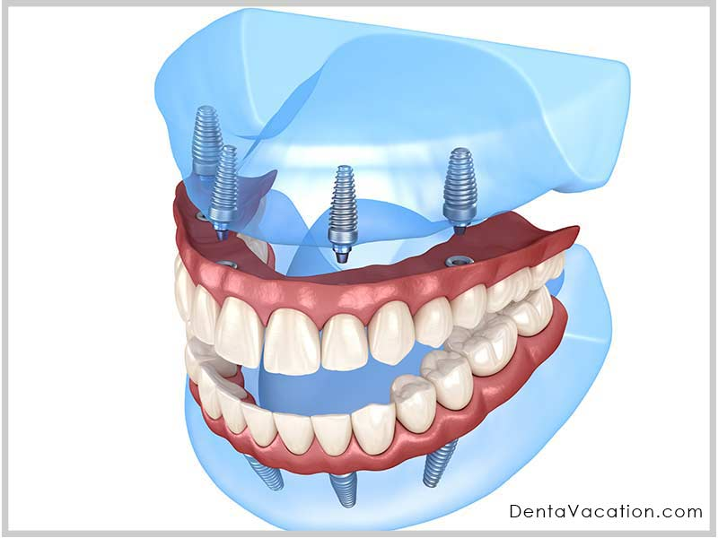 All on four Dental Implants in Chandigarh