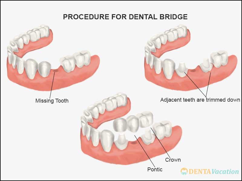 Dental Bridge | Dental Implants Alternative