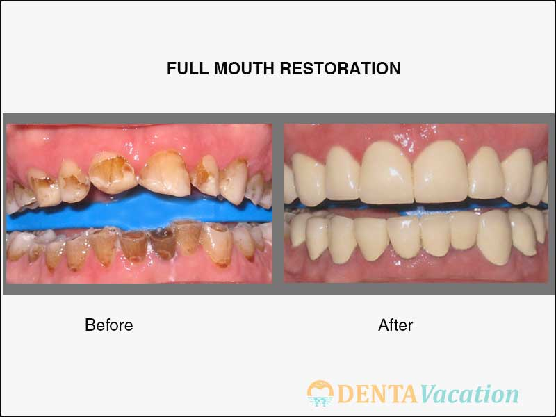 Full Mouth Restoration Abroad Before and After in Cancun