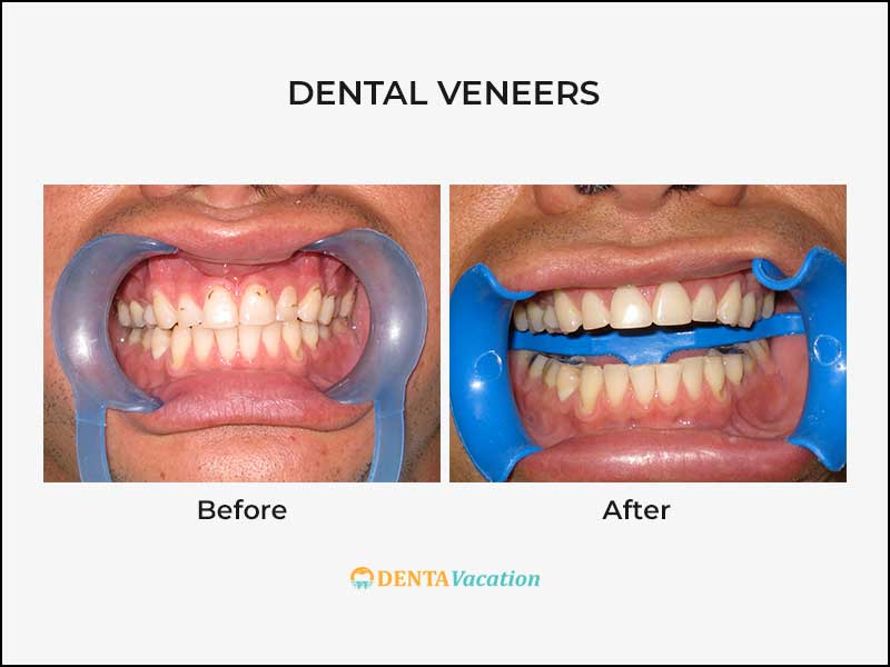 Low Cost Dental Veneers Abroad