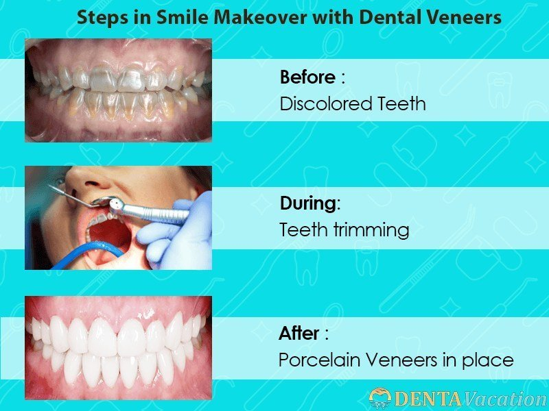 steps in Smile makeover in Cancun