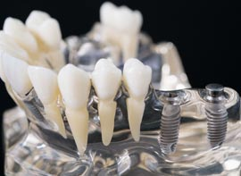Affordable Dental Implants Abroad