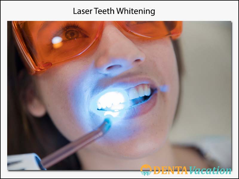 Affordable Laser Teeth Whitening Abroad