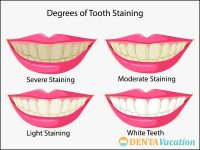 Degrees of Tooth Staining