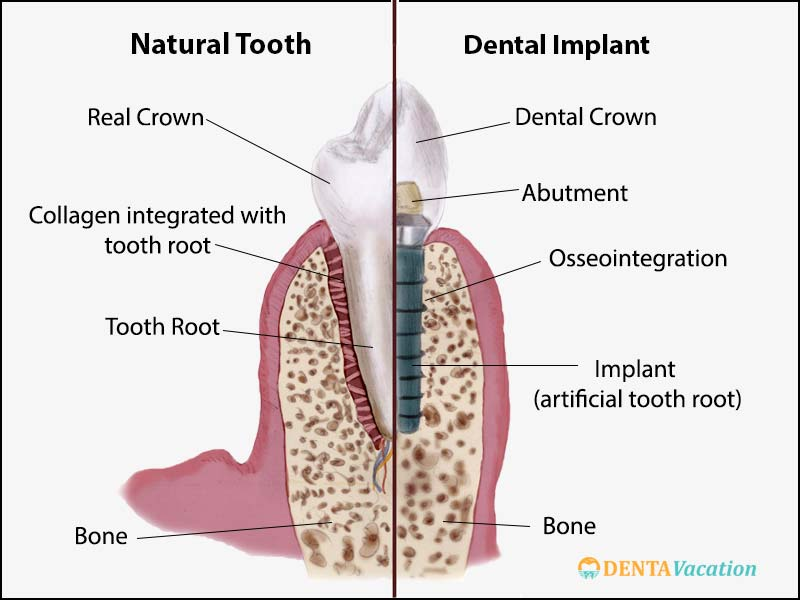 Dental Implant Structure | Dental Implants in Colombia
