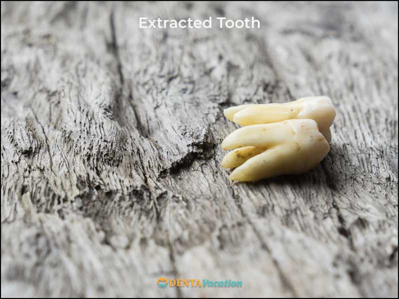 Low Cost Teeth Extraction Abroad