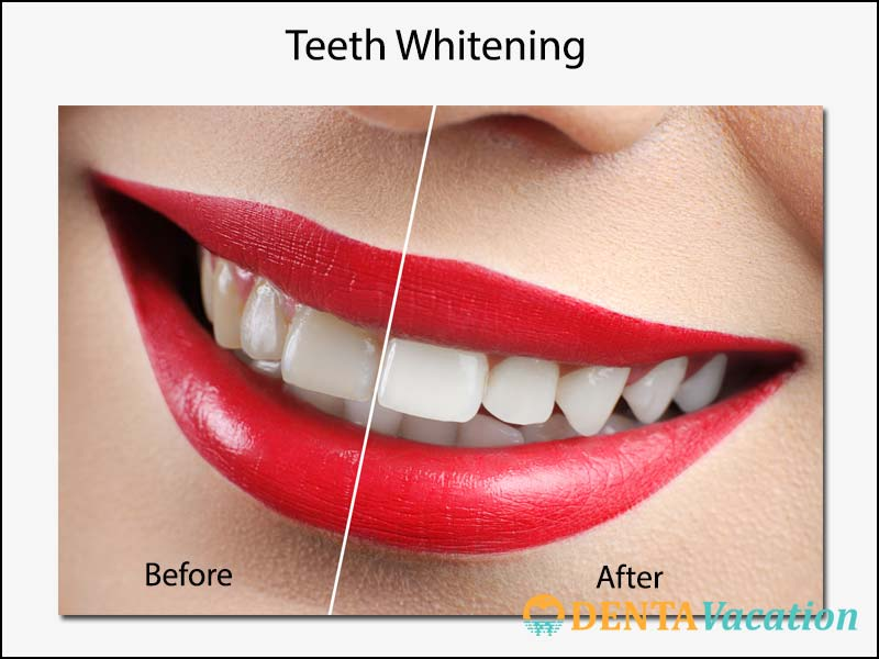 Affordable Teeth Whitening Abroad Cost And Process