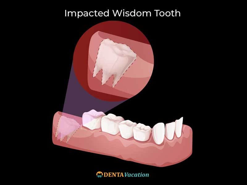 Wisdom Tooth Extraction Abroad