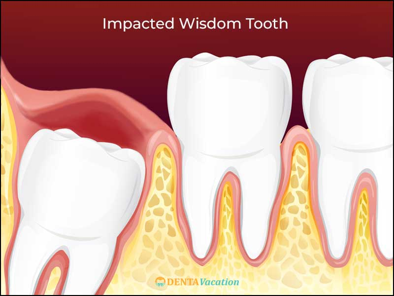 Low Cost Extraction Abroad Impacted Wisdom tooth