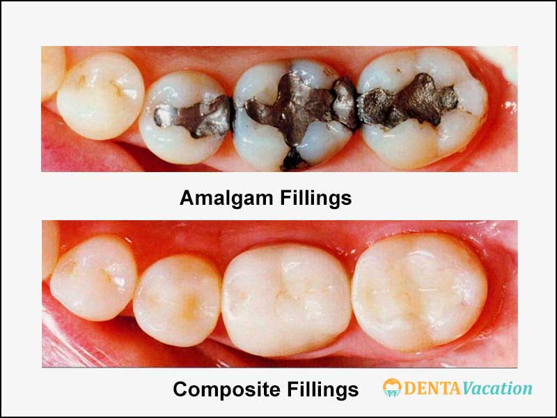 Low Cost Dental Fillings Abroad - Types