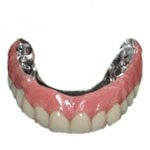 full mouth rehabilitation Prosthesis for all on 4 implants in Costa Rica
