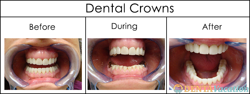 Full mouth rehab with Porcelain dental crowns in Costa Rica