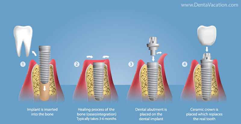 Osseointegration in implants