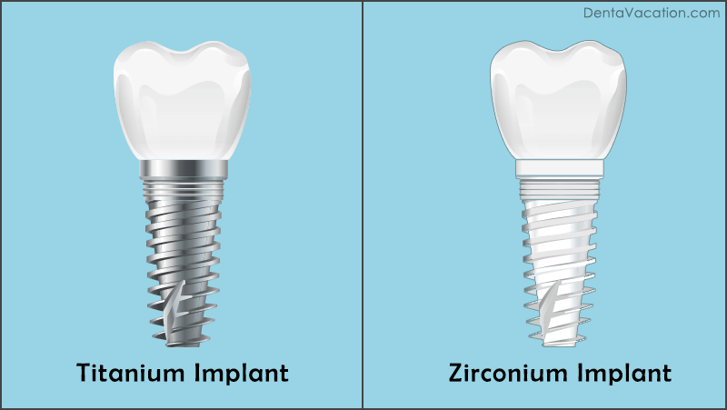 Titanium Vs Zirconium Dental Implant in Colombia