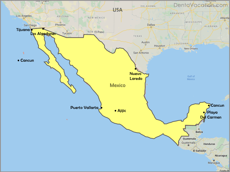 Dental destinations in Mexico