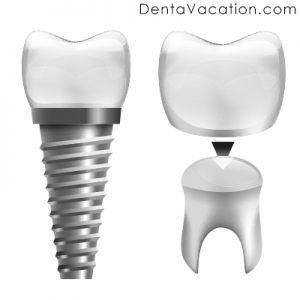 Dental Crowns in Cabo