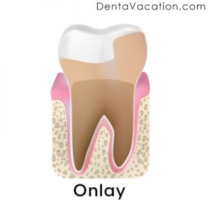 Dental Onlays in Cabo
